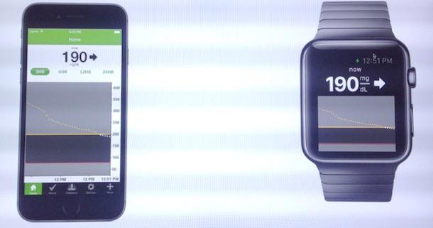 apple_watch_dexcom